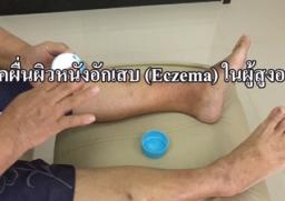 VDO โรคผื่นผิวหนังอักเสบ (Eczema) ในผู้สูงอายุ